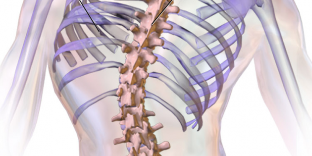 graphic of scoliosis and abnormal curve of the spine
